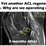 Последний результат регенерации ACL